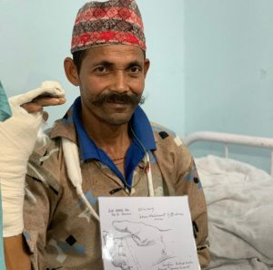 Art and wellbeing. image of Nepalese man after operation on hand.