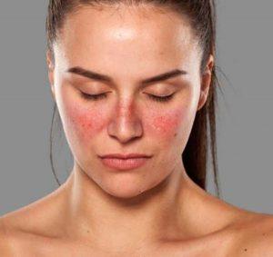 Lady with lupus rash